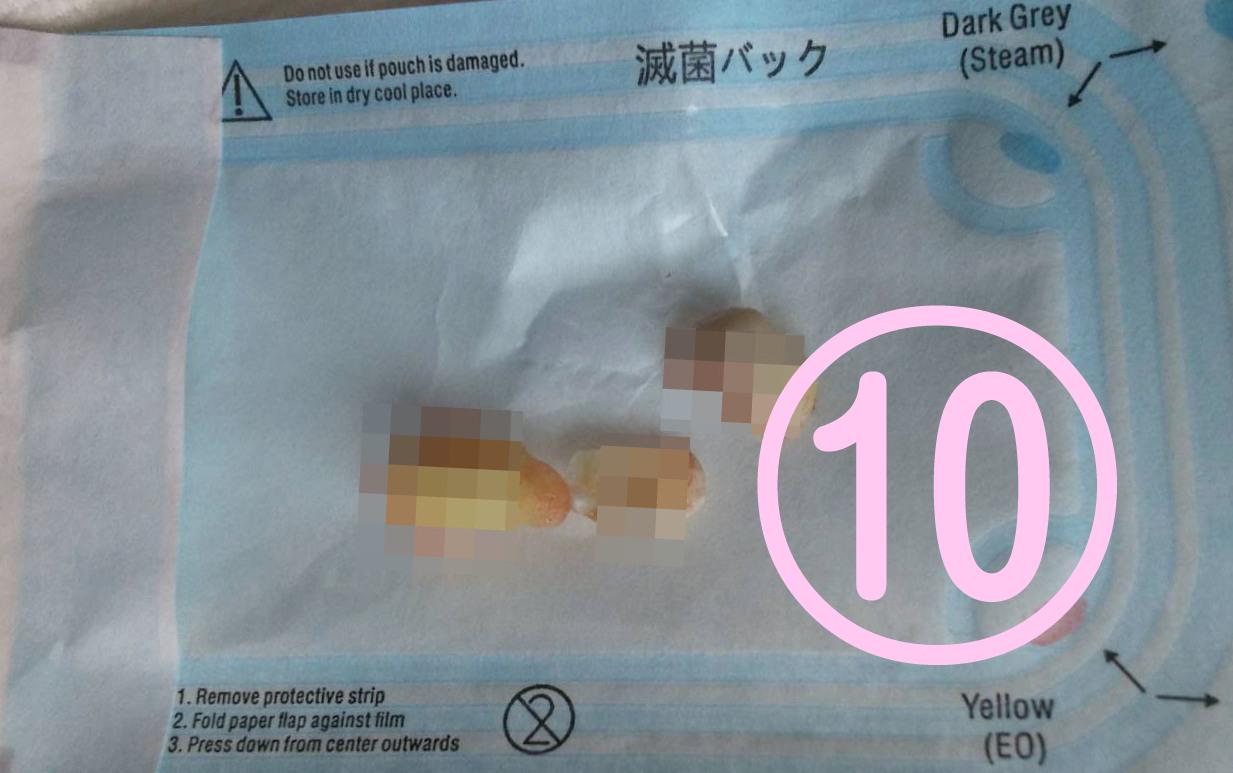 親知らず抜歯記録10