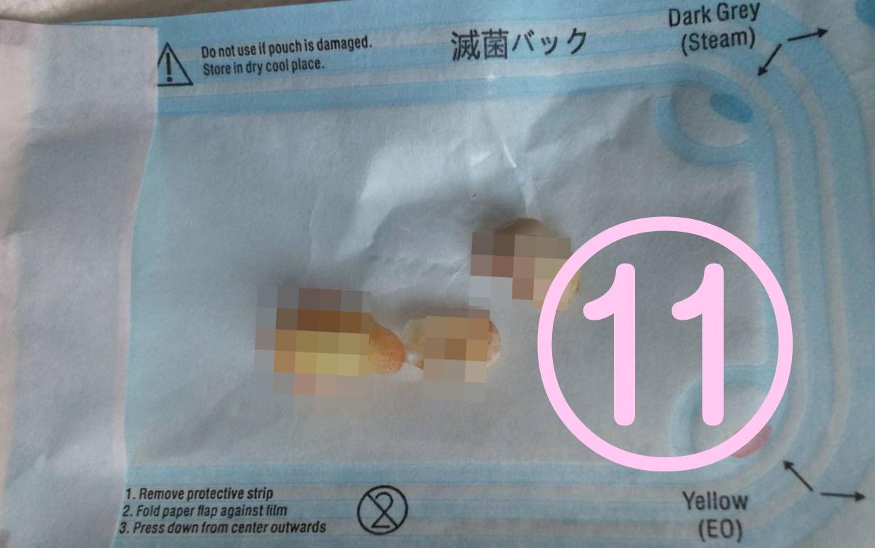 親知らず抜歯記録11