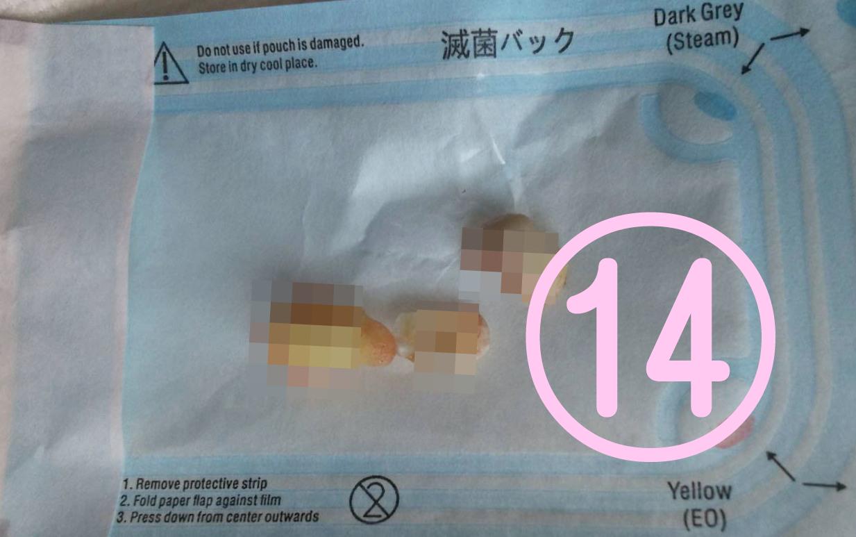 親知らず抜歯記録14