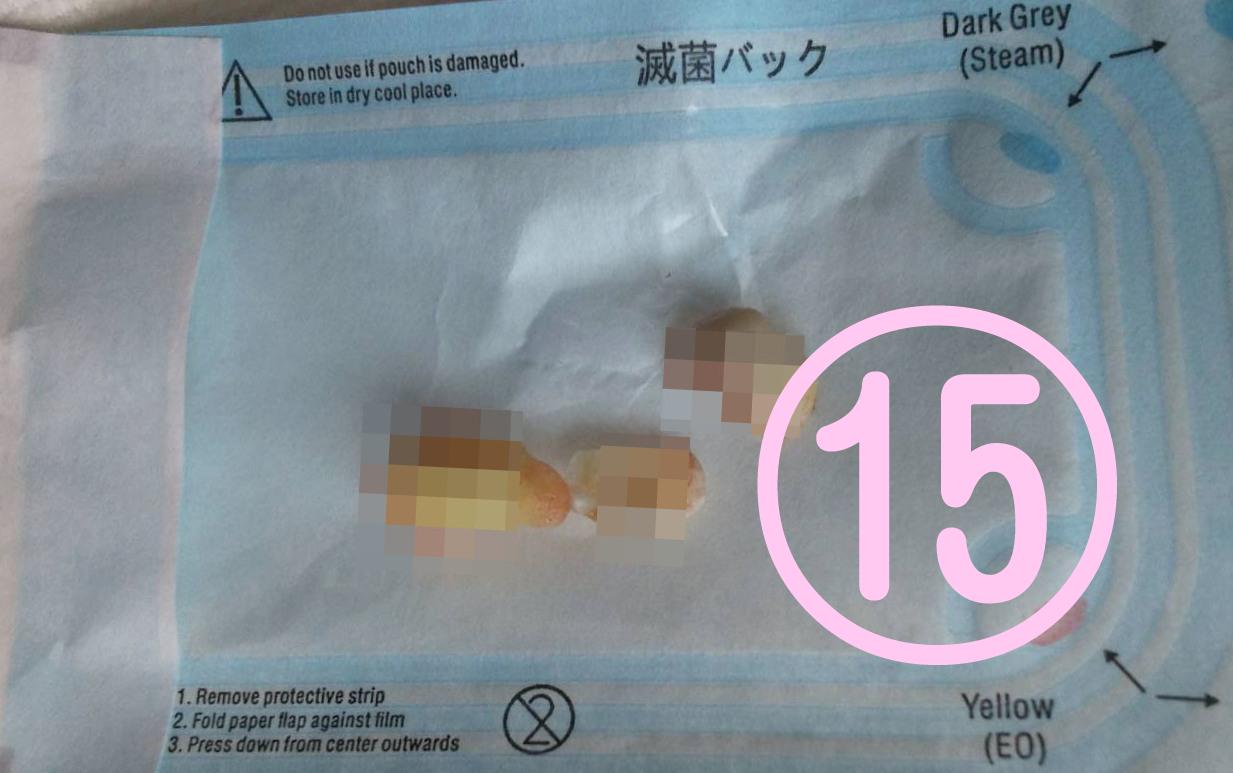 親知らず抜歯記録15