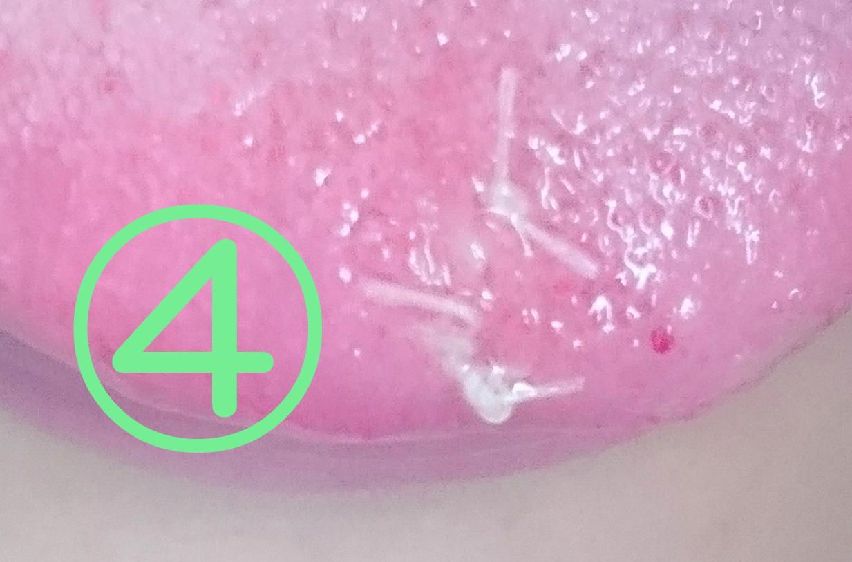 舌先乳頭腫の切除記憶4