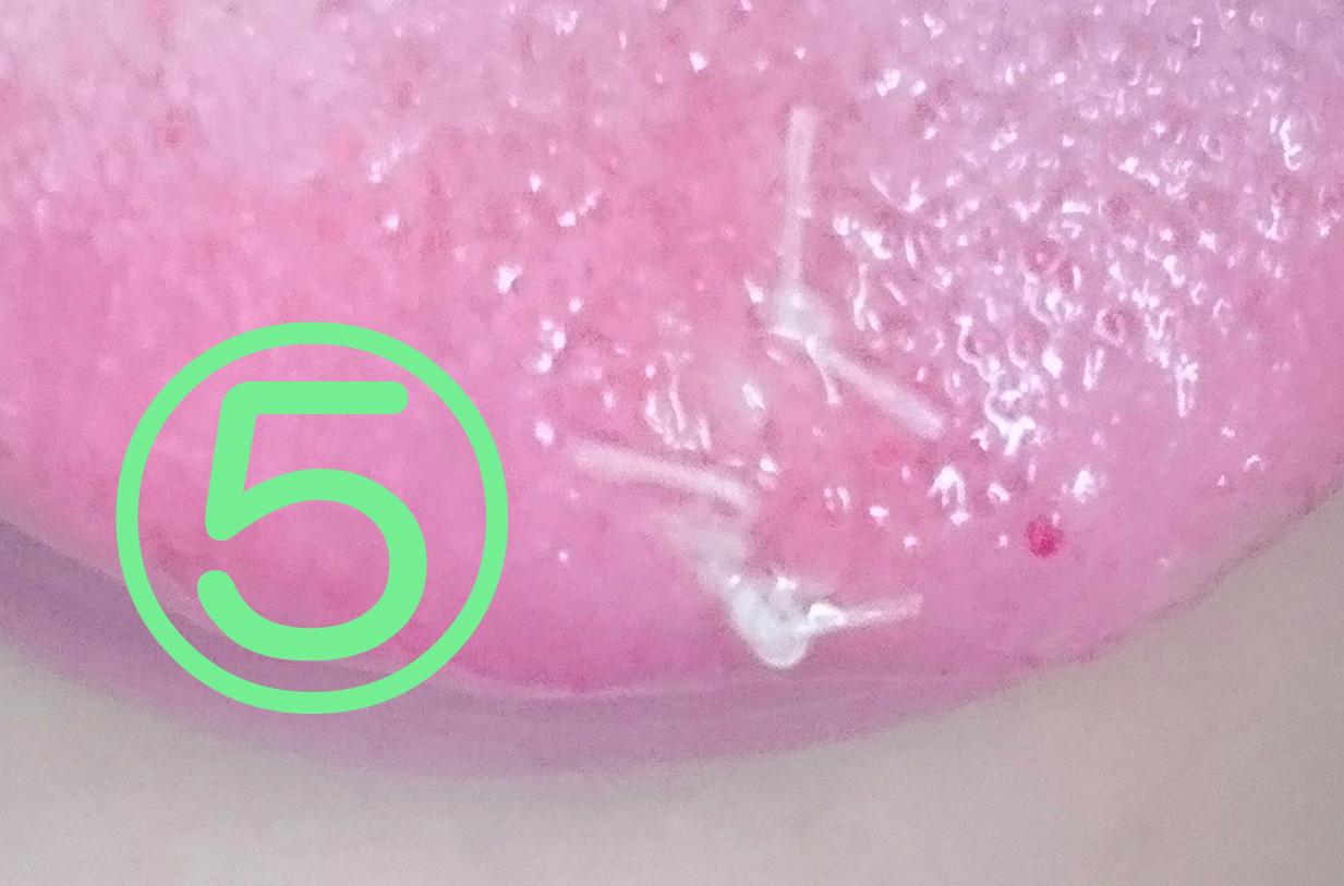 舌先乳頭腫の切除記憶5