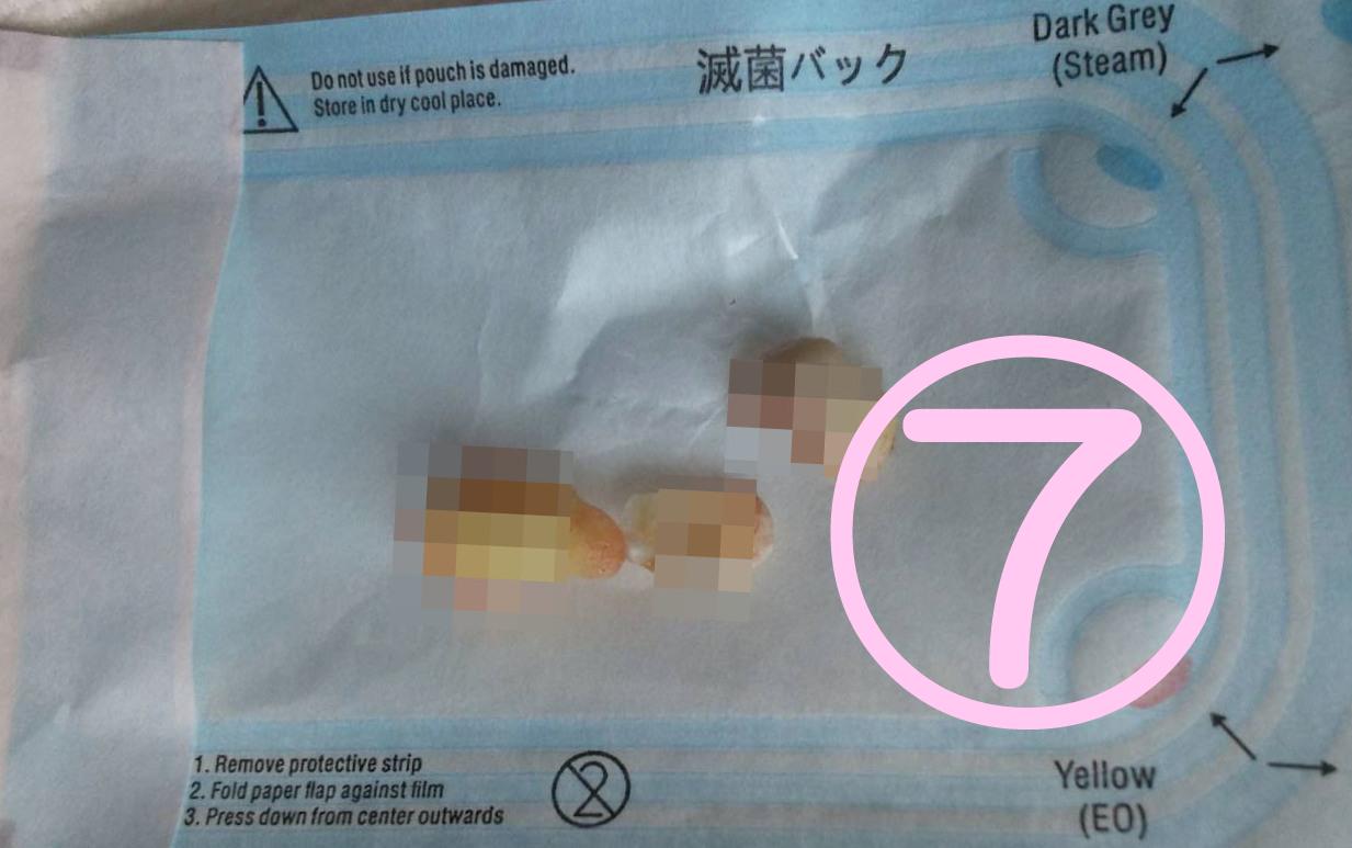 親知らず抜歯記録7